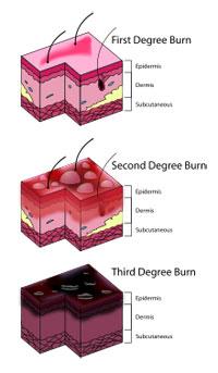 Burn injury.